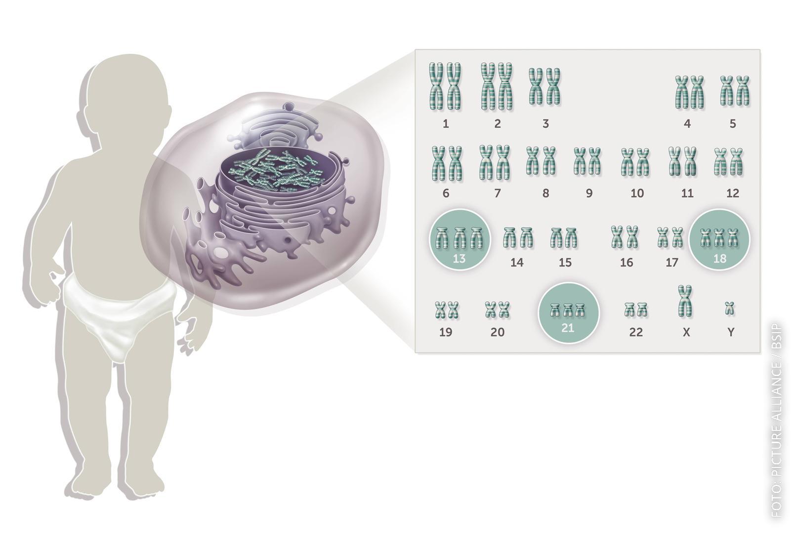 Grafik mit verschiedenen Trisomien. Teilweise sieht man dreifache statt doppelte Chromosomen.